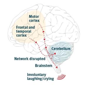 brainb